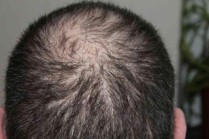 Haarausfall bei Männern und Frauen