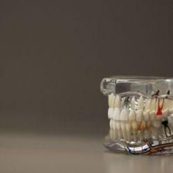 Was Sie über Zahnimplantate und Zahnprothesen wissen sollten